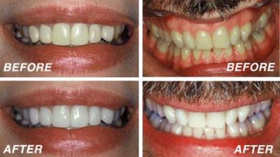 whitening_teeth